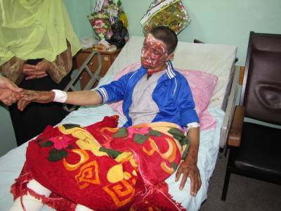 Moyad Al-Qanoo,  16  - injuries caused by second degree burns on the face and on the legs. He has shrapnel in various parts of his body.
