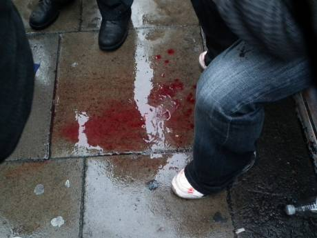 The future is the young people. Here we see the blood of the young people on the street